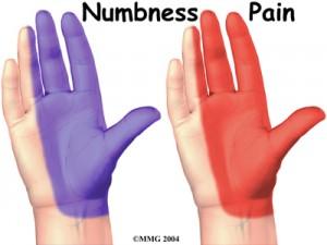hand_carpal_tunnel_symptoms01